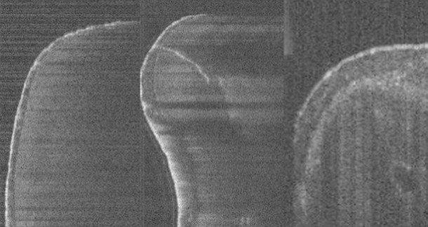 Vizualne informacije in slikovna tehnologija v endodontiji