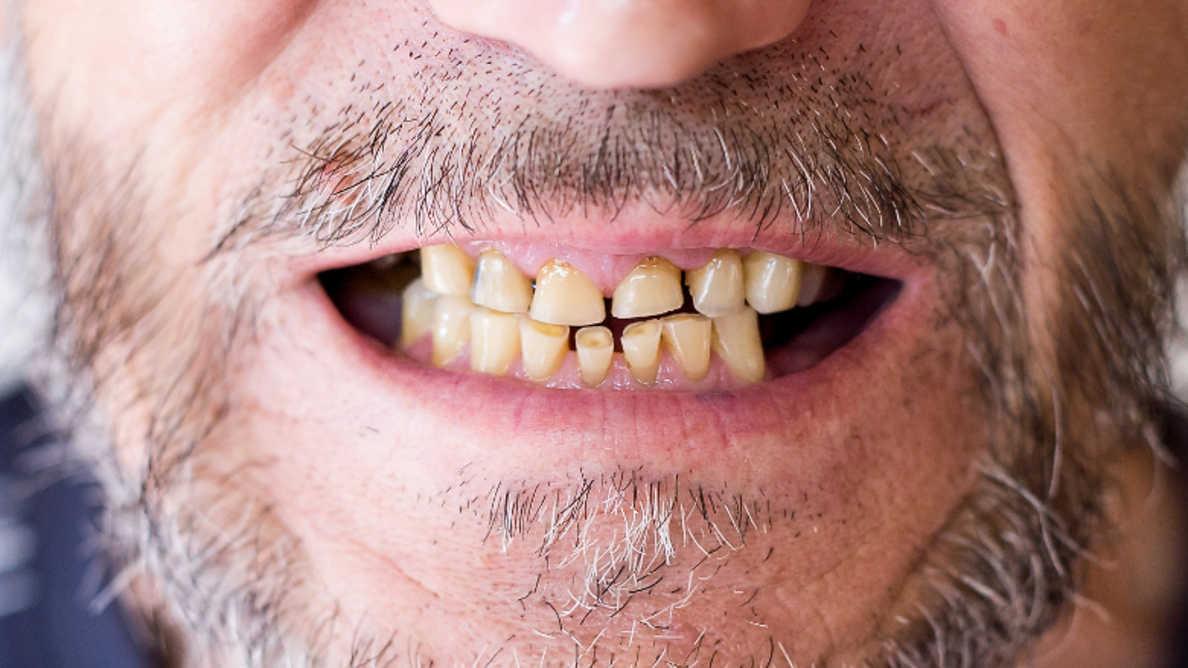 Pandemija povzroča povečanje incidence stresnih pogojev ustnega zdravja